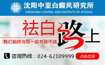 沈阳中亚白癜风研究所官网