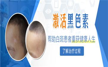 沈阳中亚马萍介绍治疗白癜风激素类药物与激素针的区别