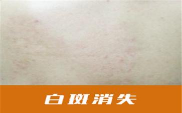 沈阳中亚马萍讲解白斑变黑后能恢复到正常肤色