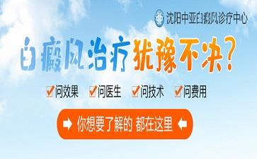 沈阳中亚马萍介绍治疗白癜风可以将中药和西药结合使用吗