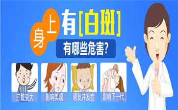 沈阳中亚马萍介绍治疗白癜风的激素药