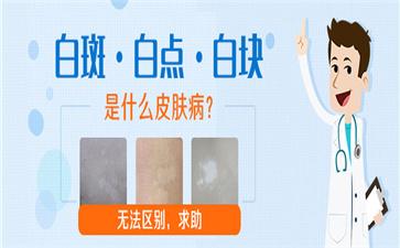 沈阳中亚马萍介绍抹药治疗白癜风