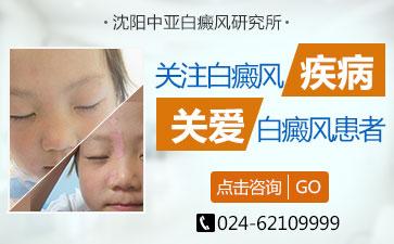 沈阳小孩得白癜风有哪些症状